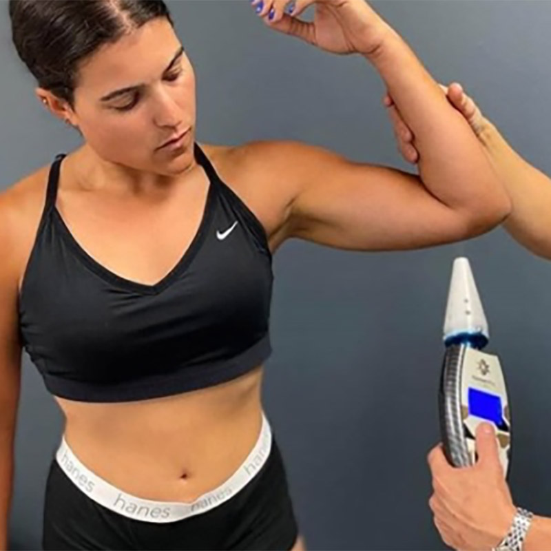cryotherapy on arms