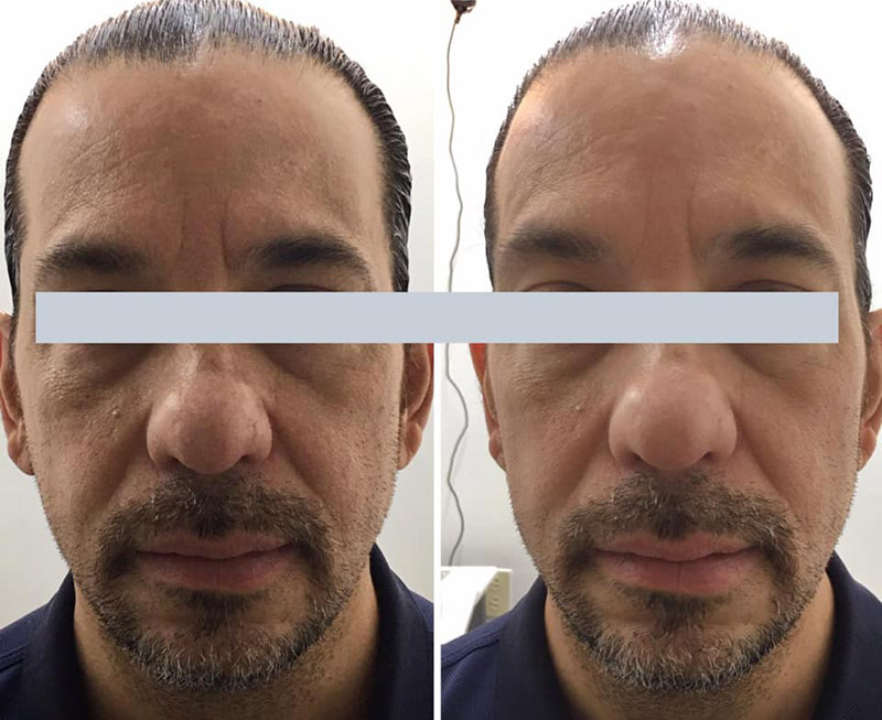 cryotherapy on face